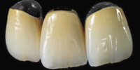3_coroane_metalo_ceramice_frontale