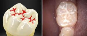 Sigilarea-dentara
