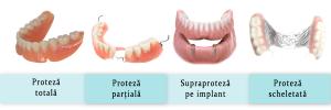 tipuri-de-proteze-dentare