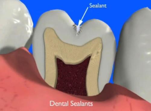 Sigilarile-protejeaza-dintii-de-carii-Captura-YouTube5