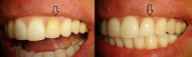 Albire endodontica-1