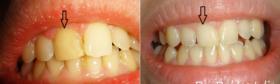 Albire endodontica-2