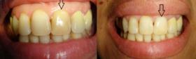 Albire endodontica-3