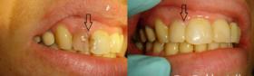Albire endodontica-4