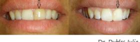 Albire endodontica-5