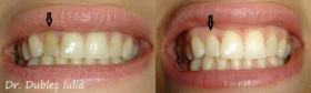 Albire endodontica-6