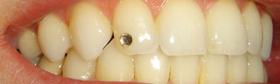 Bijuterii dentare-01