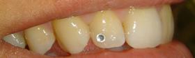 Bijuterii dentare-02