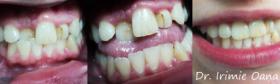 Ortodontie-1
