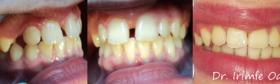 Ortodontie-2